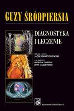 Guzy śródpiersia. Diagnostyka i leczenie