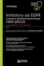 W gabinecie lekarza specjalisty. Onkologia. Inhibitory osi EGFR w leczeniu niedrobnokomórkowego raka płuca. Najnowsze wytyczne