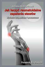 Jak leczyć reumatoidalne zapalenie stawów II