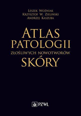 Okładka książki/ebooka Atlas patologii złośliwych nowotworów skóry