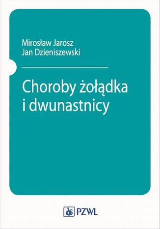 Okładka książki/ebooka Choroby żołądka i dwunastnicy