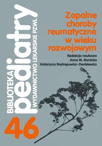 Okładka książki/ebooka Zapalne choroby reumatyczne w wieku rozwojowym