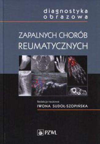 Okładka książki Diagnostyka obrazowa zapalnych chorób reumatycznych