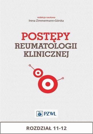 Okładka książki Postępy reumatologii klinicznej. Rozdział 11-12