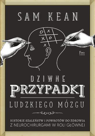 Okładka książki/ebooka Dziwne przypadki ludzkiego mózgu. Historie szaleństw i powrotów do zdrowia z neurochirurgami w roli głównej