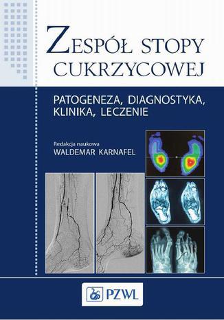 Okładka książki/ebooka Zespół stopy cukrzycowej. Patogeneza, diagnostyka, klinika, leczenie