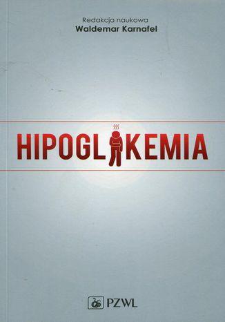 Okładka książki/ebooka Hipoglikemia