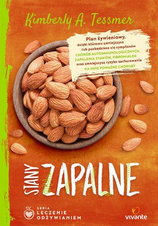 Okładka książki/ebooka Leczenie odżywianiem. Stany zapalne