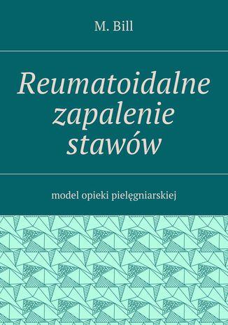 Okładka książki/ebooka Reumatoidalne zapalenie stawów