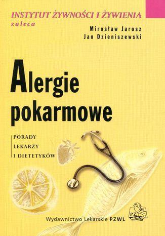 Okładka książki/ebooka Alergie pokarmowe