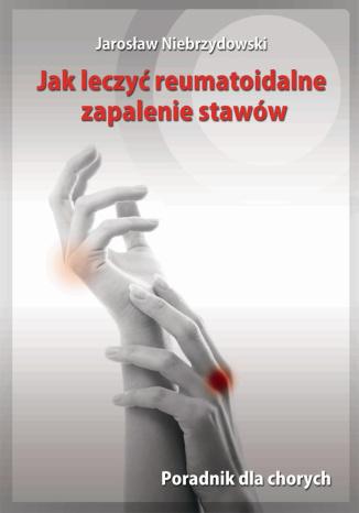 Okładka książki/ebooka Jak leczyć reumatoidalne zapalenie stawów. Poradnik dla chorych
