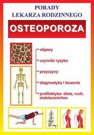 Okładka książki/ebooka Osteoporoza