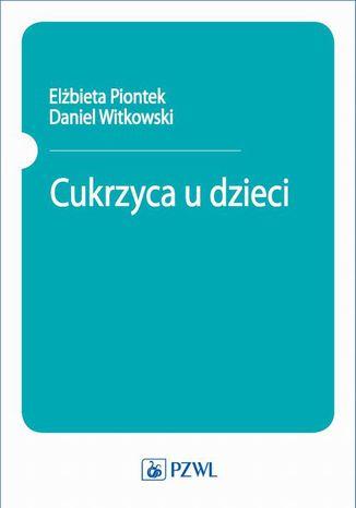 Okładka książki/ebooka Cukrzyca u dzieci