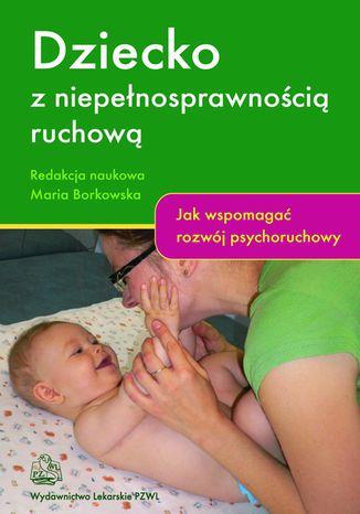 Okładka książki Dziecko z niepełnosprawnością ruchową