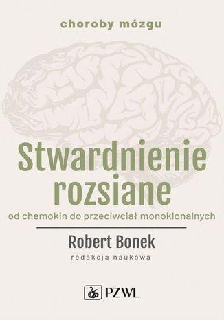 Okładka książki/ebooka Stwardnienie rozsiane