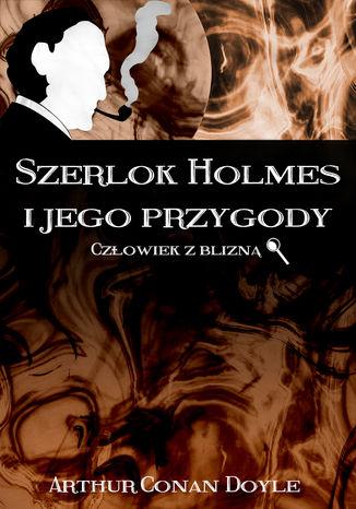 Okładka książki Szerlok Holmes i jego przygody. Człowiek z blizną