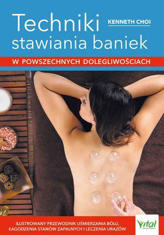 Okładka książki/ebooka Techniki stawiania baniek w powszechnych dolegliwościach. Ilustrowany przewodnik uśmierzania bólu, łagodzenia stanów zapalnych i leczenia urazów