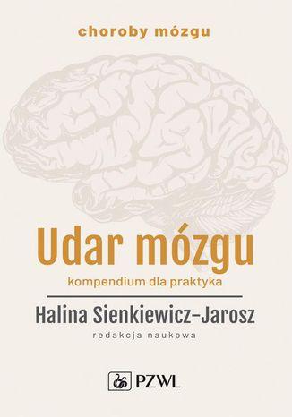 Okładka książki Udar mózgu. Kompendium dla praktyka