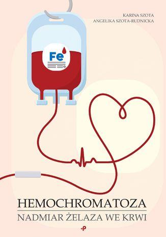 Okładka książki Hemochromatoza. Nadmiar żelaza we krwi