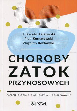 Okładka książki/ebooka Choroby zatok przynosowych