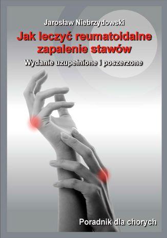 Okładka książki/ebooka Jak leczyć reumatoidalne zapalenie stawów II