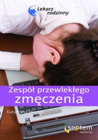 Zespół przewlekłego zmęczenia. Lekarz rodzinny